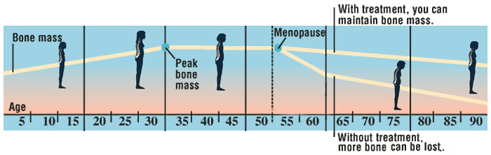 Chart showing bone mass changes from age 5 to age 90. Peak bone mass around age 30. Menopause around age 50. Without treatment bone mass declines. With treatment, bone mass can be maintained.