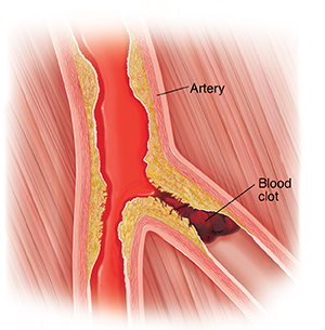 Cross section of peripheral artery with plaque buildup and blood clot.