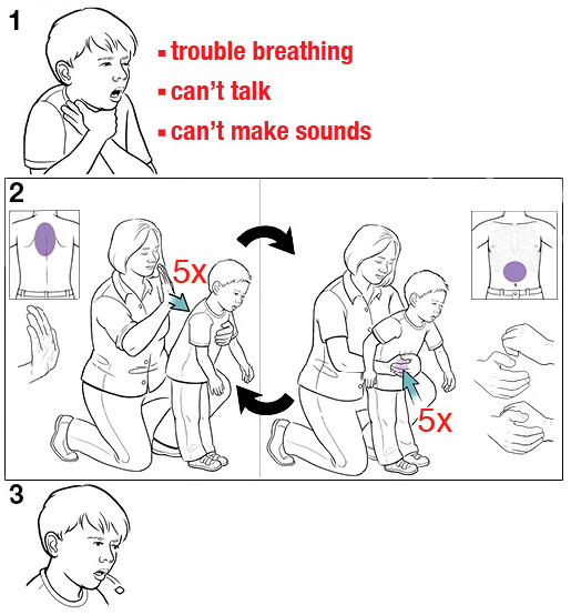 3 steps for doing the Heimlich maneuver on a choking child