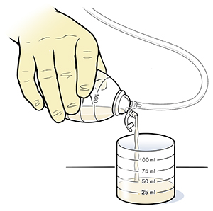 Closeup of gloved hand pouring fluid from drainage bulb into measuring flask.