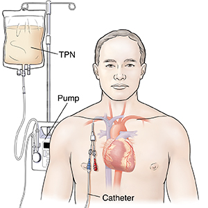Front view of man showing heart with central line attached to an IV pump.