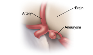 Closeup view of brain aneurysm.