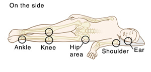 Outline of person lying on side with bones visible. Circles indicate pressure points: Ear, shoulder, hip area, knees, ankle.