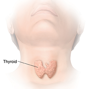 3-82164 Common Thyroid Problems Illustrations (3) Medical illustration Front view of head and neck showing thyroid.
