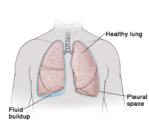 Outline of man's neck and chest showing fluid buildup under right lung.