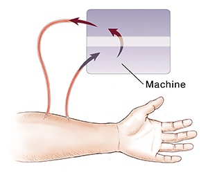 Closeup of arm showing fistula between artery and vein and catheters moving blood to and from dialyzer for hemodialysis.