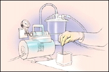Drawing showing a suction tube suctioning normal saline from a bowl.