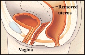 Cutaway view of uterus and vagina
