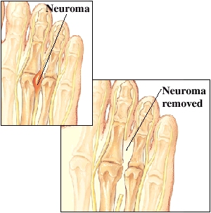Image of neuroma; and of  neuroma removed