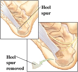 Image of heel spur and heel spur removed