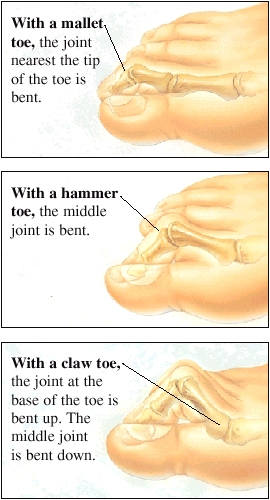 Images of a mallet toe, a hammer toe, and a claw toe