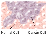 Microscopic view of normal cells and cancer cells.