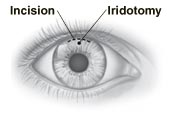 Front view of eye showing incision at top of iris, and hole for iridotomy.