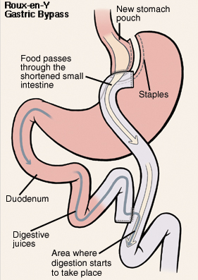 Front view of stomach and duodenum. Stomach has been cut and stapled to form pouch. Cut end of small intestine has been brought up to connect to stomach pouch. Duodenum has been cut and reattached to small intestine. Arrow shows food passing from stomach into shortened small intestine. Another arrow shows path of digestive juices from stomach through duodenum and into small intestine. Digestion begins in small intestine.
