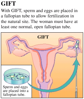 Cross section of uterus showing GIFT. Laparoscopic instrument is releasing sperm and eggs into open end of fallopian tube. Label reads: With GIFT, sperm and eggs are placed in a fallopian tube to allow fertilization in the natural site. The woman must have at least one normal, open fallopian tube. Inset of sperm and eggs in lab dish with label: Sperm and eggs are placed into a fallopian tube.