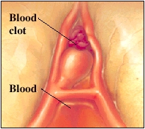 Cutaway view of blood clot