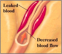 Cutaway view of narrowed artery showing leaked blood and decreased blood flow