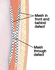 Cross section of abdominal wall showing mesh repair in front of, through, and behind hernia defect.