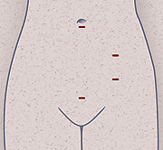 Outline of a belly showing 2 to 4 incisions.