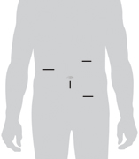 Image of incision sites