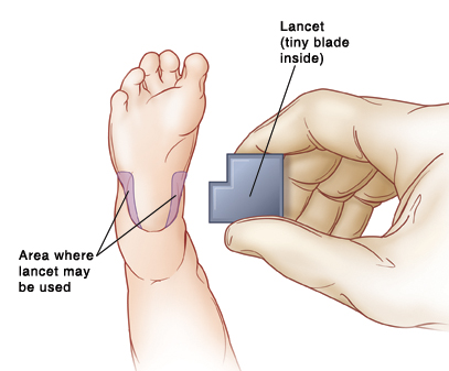 Bottom of baby's foot with areas on either side of heel shown where lancet may be used. Hand holding lancet which has tiny blade inside.