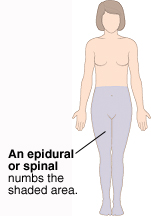 Figure of woman; lower half of body is shaded, indicating where a spinal epdiural affects.